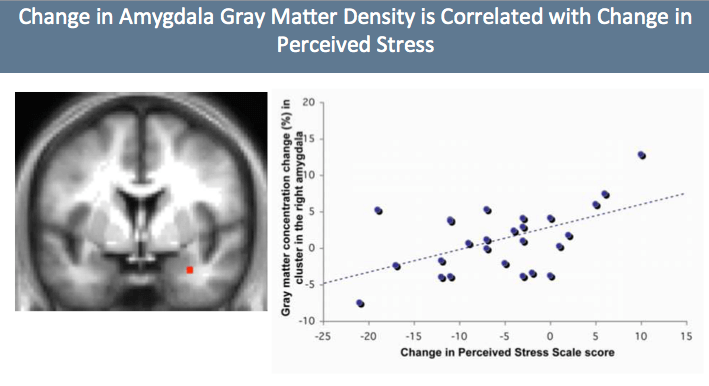Change in grey matter density