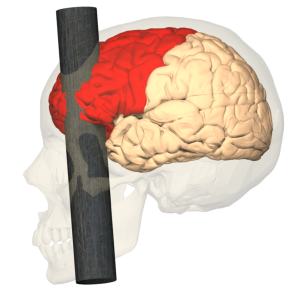 Head Injury of Phineas Gage