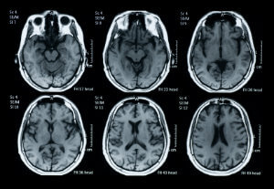 Can You Train Your Mind for Happiness? - Brain scan